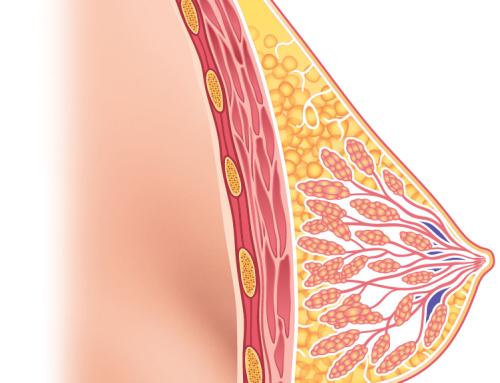 Упражнение при лактостазе, профилактика лактостаза